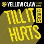 Nghe nhạc hay Till It Hurts (Remixes EP) Mp3 miễn phí